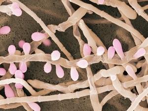 Грибки-дерматофиты