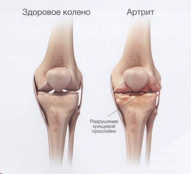Разрушение сустава при артрите