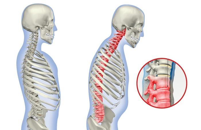 Анкилозирующий спондилоартроз: как остановить атрофию суставов?