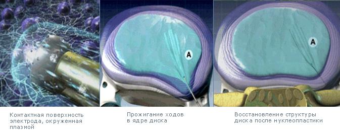 Несколько видов операции по удалению грыжи позвоночника: все за и против