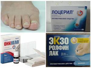 Как лечить грибок ногтей на пальцах ног