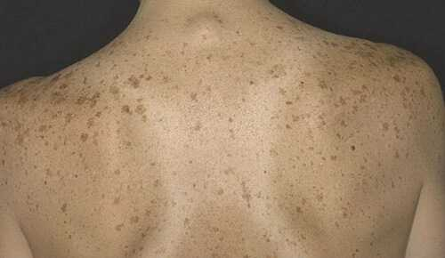 Пигментные пятна на теле: причины и лечение