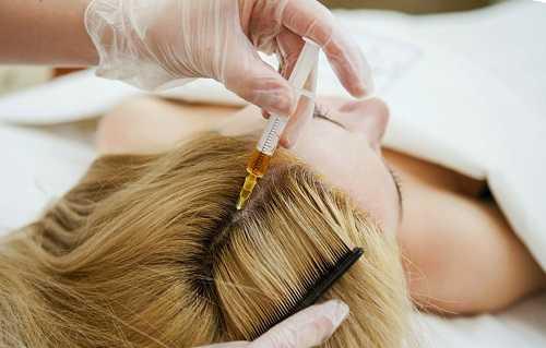 Инъекционные методы лечения волос