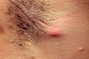лечение фурункула под мышкой