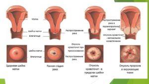 Терапия папилломы матки