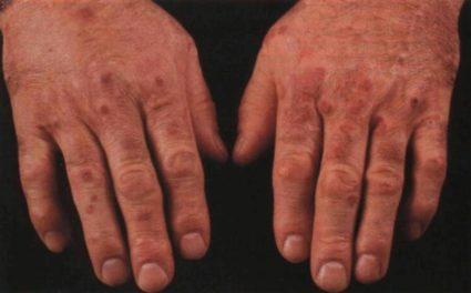 Болезнь сложно игнорировать из-за видимых симптомов