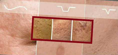 Типы шрамов от прыщей