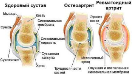 Болезнь может различаться по локализации