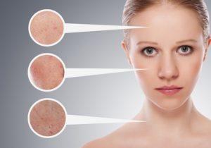 средство от шрамов и рубцов на лице