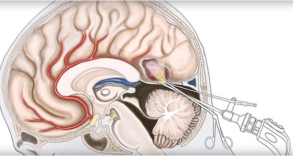 Киста мозжечка головного мозга