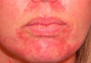 Симптомы и лечение стероидного дерматита
