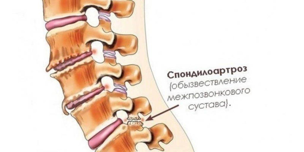 Спондилоартроз позвоночника: можно ли предотвратить разрушение суставов?