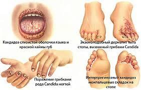 В чем особенности и причины появления болезни