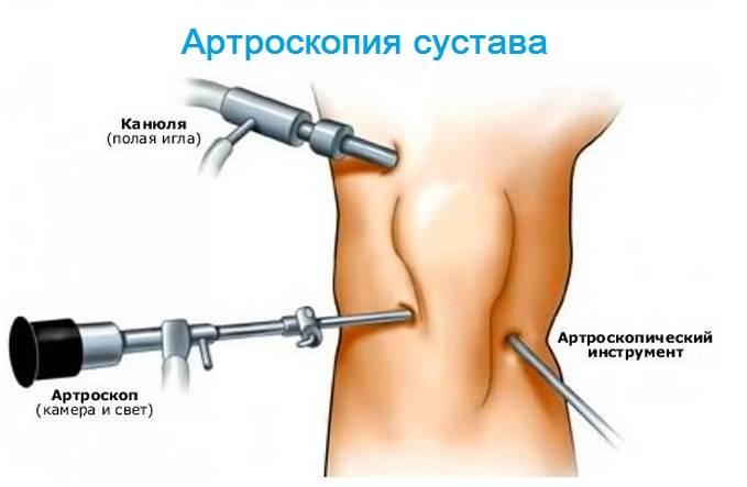 Использование артроскопа